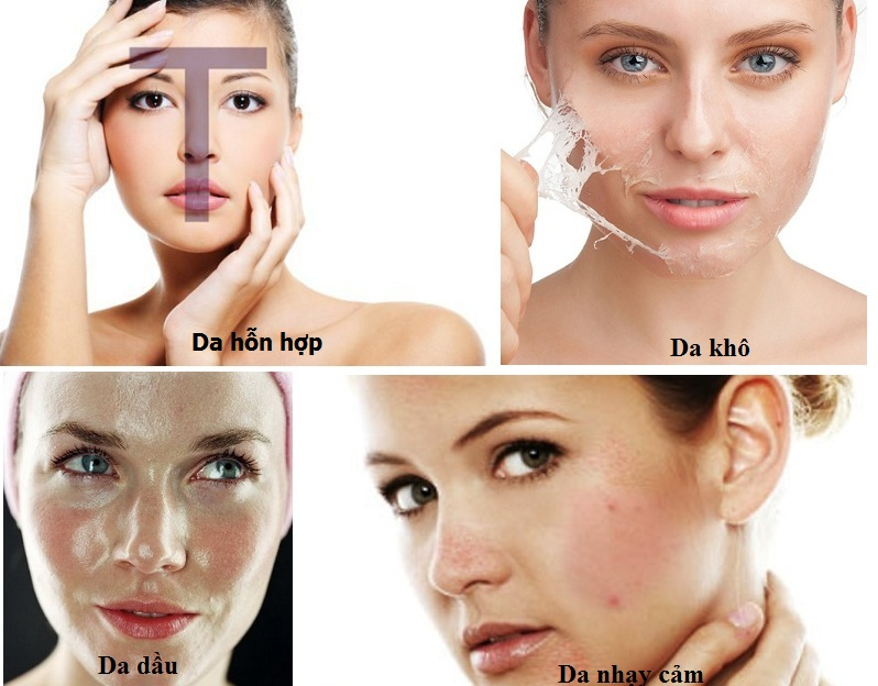 Làm sao để nhận biết da dầu, da dầu là da như thế nào?